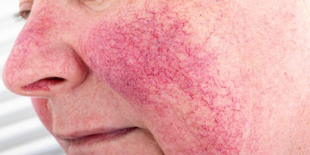 Hudterapeuten tipsar: Så undviker och lindrar du besvärande rosacea