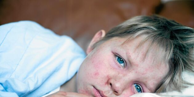 Hur stor är risken för mässling? Experten svarar