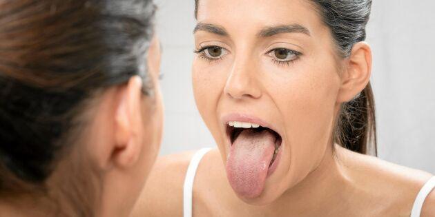 Din tunga avslöjar hur du mår – här är tecknen du ska ha koll på