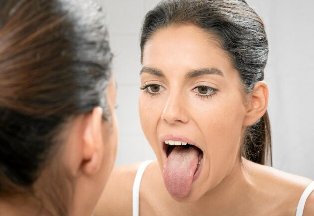 Håll koll på tungan. Den kan visa tecken på att allt inte står rätt till med hälsan. Eller att det är precis som det ska.