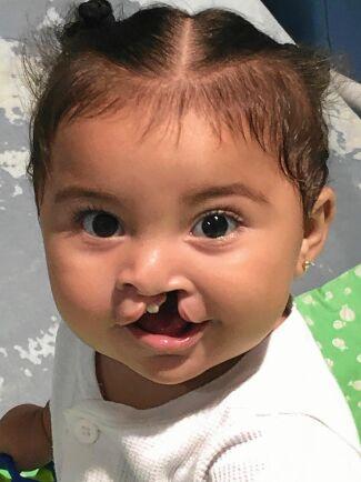 Marianas namne, 1,5 år gamla Mariana från Nicaragua som opererades i mars förra året. Hon hade tur som fick operationen så tidigt i livet. Hon har inte hunnit stängas ute från samhället.