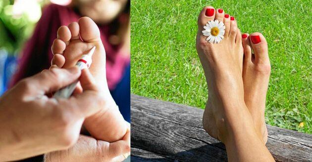 Bli kvitt fotsvampen så slipper du besvären och får fina fötter på köpet.