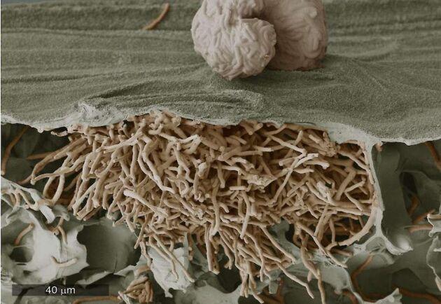Svampen tränger sedan in i bladen och bryter ned bladens celler och de kanaler som förser axet med näring och energi. Bilden visar svartpricksjuka som sprider sig i bladet och bryter igenom bladytan – 30 dagar efter infektion.