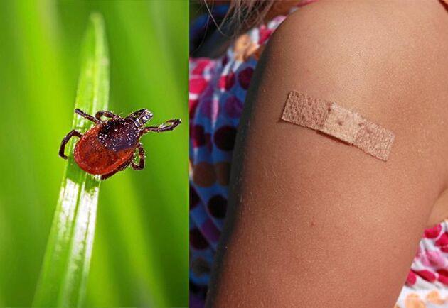 Vaccin är det enda skyddet mot den fästingburna virussjukdomen TBE.