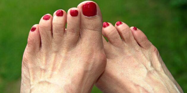 Expert på hallux valgus: Så lindrar du smärtan i fötterna