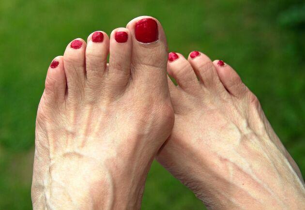 Hallux valgus är ett vanligt och smärtsamt fotproblem som ger snedställda stortår och ofta en knöl vid stortåleden.