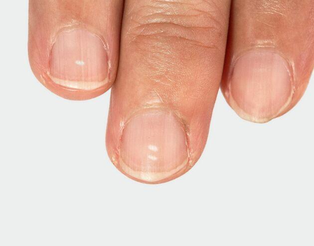 Teorierna om varför man få vita fläckar på naglarna är många och oftast felaktiga.